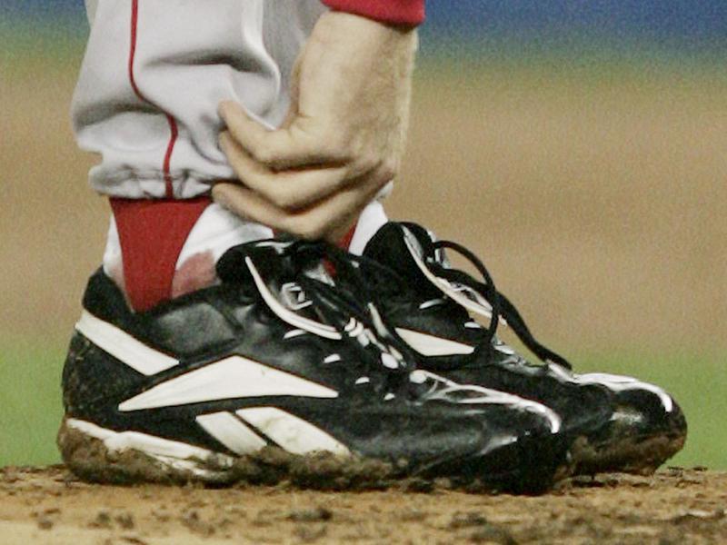 Curt Schilling's bloody sock