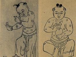 1000: First Chinese Inoculation
